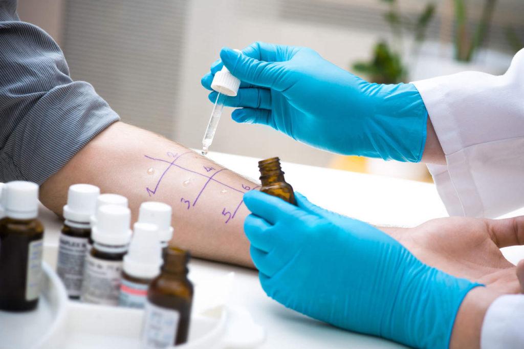 alergia pokarmowa - wykonywanie testu na alergię